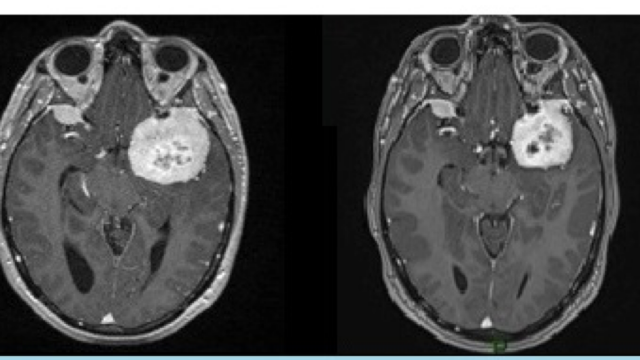 Our new publication in Acta Neurochirurgica : Spontaneous regression of meningiomas after interruption of nomegestrol acetate: a series of three patients.