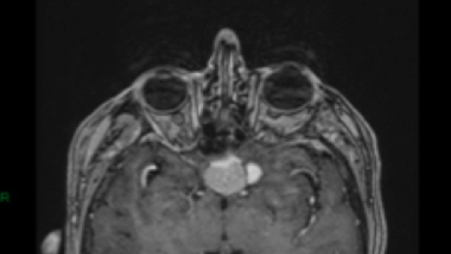 Spontaneous regression of meningiomas after interruption of nomegestrol acetate: a series of three patients.