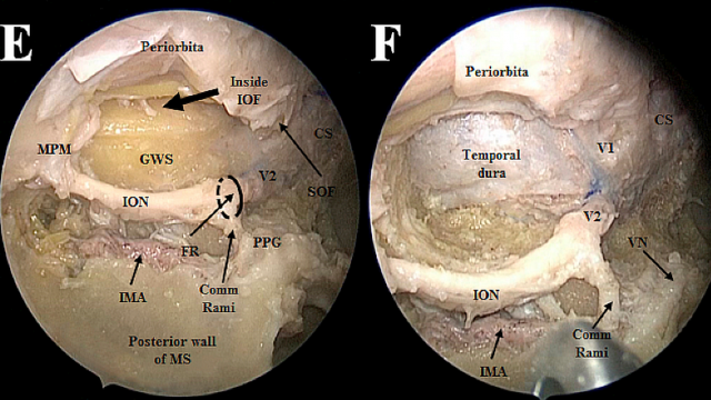 Endoscopic endonasal approach to the mesial temporal lobe: anatomical study and clinical considerations for a selective amygdalohippocampectomy – Acta Neurochirurgica December 2019