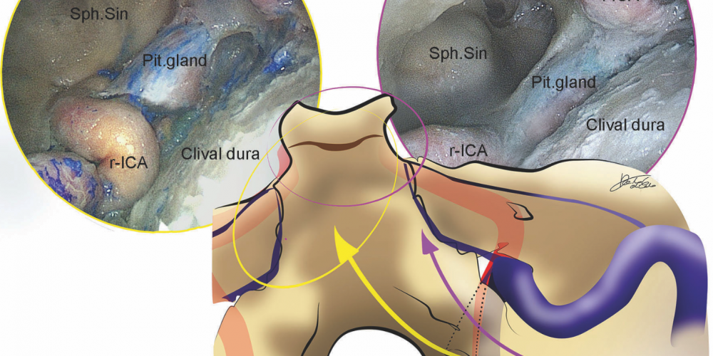 Hybrid Antero-Lateral Transcondylar Approach to the Clivus: A Laboratory Investigation and Case Illustration – Acta Neurochirurgica (2020)
