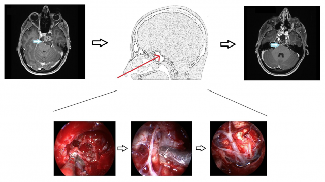 Vertebrobasilar Artery Encasement by Skull Base Chordomas: Surgical Outcome and Management Strategies – Operative Neurosurgery April 2020