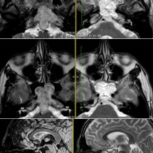 The Rostral Mucosa: The Door to Open and Close for Targeted Endoscopic Endonasal Approaches to the Clivus