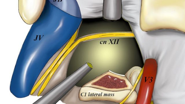 Endoscope-assisted far-lateral transcondylar approach for craniocervical junction chordomas: a retrospective case series and cadaveric dissection