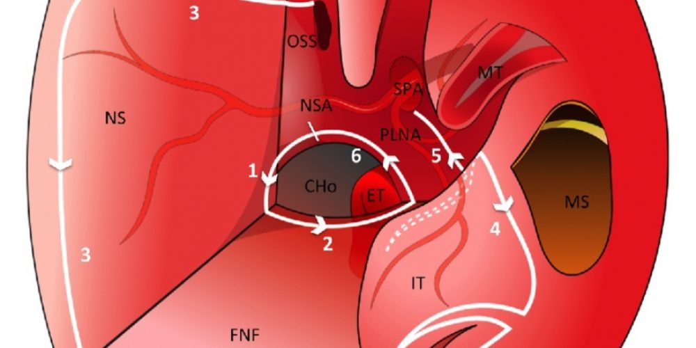 New Publication from Our Group: Combined Nasoseptal and Inferior Turbinate Flap for Reconstruction of Large Skull Base Defect After Expanded Endonasal Approach