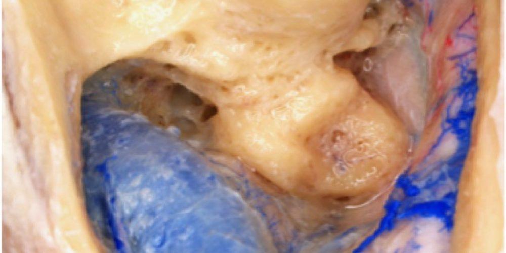7th Neurosurgical Skull Base Masterclass