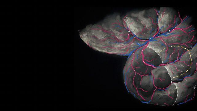 Hotspots of small strokes in glioma surgery: an overlooked risk?  Acta Neurochir (Wien). 2018 Nov 10