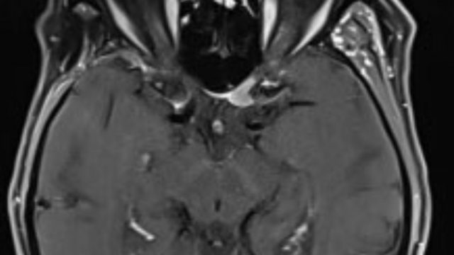 Resection of an Optic Canal Meningioma through a Contralateral Subfrontal Approach with Endoscopic Assistance: A 2D Operative Video.  Labidi M, Watanabe K, Bernat AL, Hanakita S, Froelich S