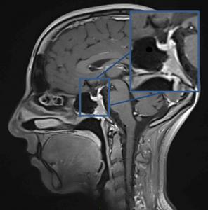 Adénome Hypophysaire | Neurochirurgie de L hôpital Lariboisière